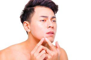 メンズのニキビ肌を綺麗に改善するための方法について